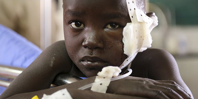 Troubled country: A young boy injured while fleeing from violent clashes rests at a medical clinic inside the United Nations compound on the outskirts Juba, South Sudan