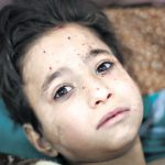 Brisbane parish praying for Syria after seeing images of children affected by bomb blast