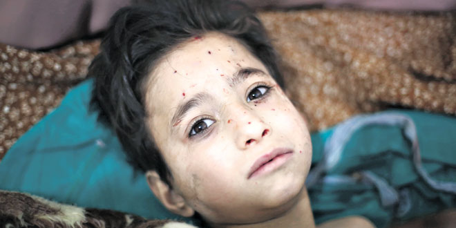 Ongoing trauma: A child in a hospital bed after being injured in a bombing in Syria.