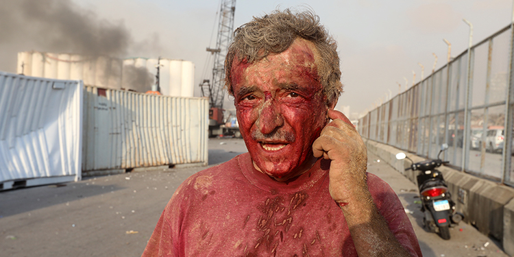 Aftermath: An injured man is pictured as smoke rises from the site of an explosion in Beirut Aug. 4, 2020.